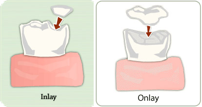dental-inlay-dental-onlays